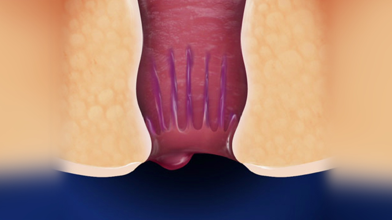 Manage Hemorrhoids Before Surgical Procedure